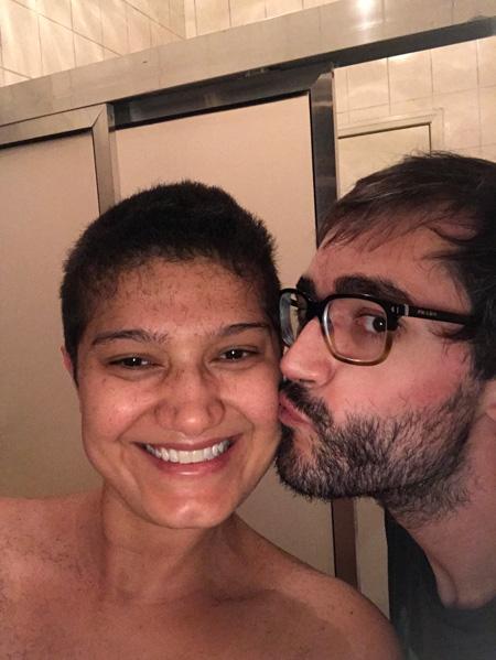 Ana Paula está com o cabelo recém raspado e podemos ver os pedacinhos de cabelo em sua testa e ombros. Seu marido beija sua bochecha.